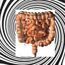 ipnosi nella cura del colon irritabile